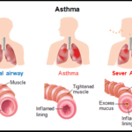 Asthma - All you need to know about Asthma
